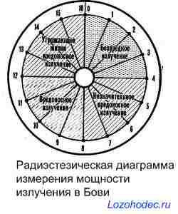 Пример радиэстезической диаграммы